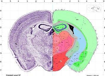 Atlas thumbnails allen brain atlas mouse brain send ccuart Image collections