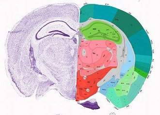 Atlas thumbnails allen brain atlas mouse brain send ccuart Gallery